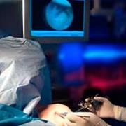 cirurgia luxaão do ombro