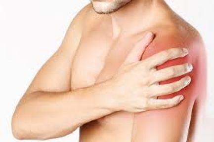 Localização típica da dor da tendinopatia do supraespinal e do manguito rotator