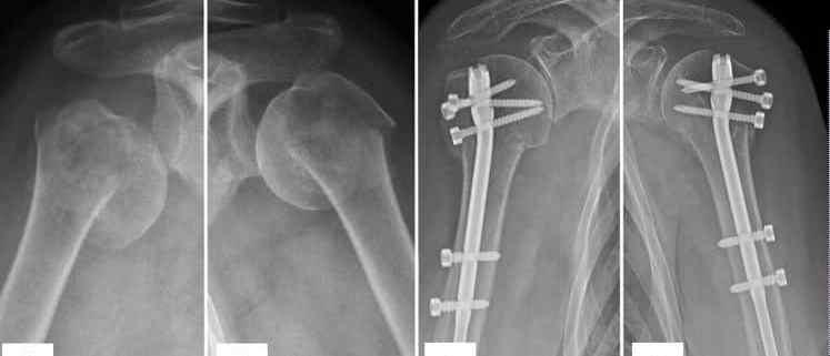 Estudo de integridade do tendão supraespinal em pacientes submetidos à fixação de fraturas da extremidade proximal do úmero