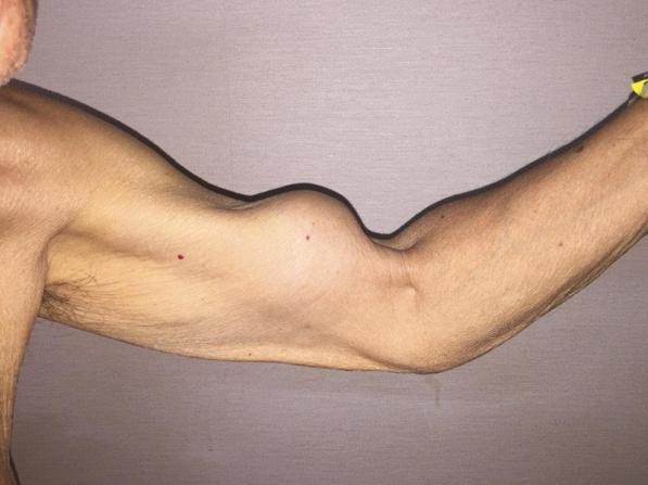 Sinal de Popeye no Bíceps