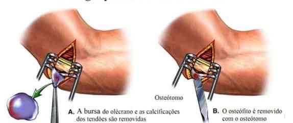 Cirurgia para bursite do cotovelo