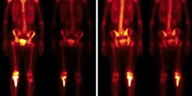 cintilografia óssea é um exame de imagem que utiliza quantidades baixas de radiação para diagnosticar possíveis alterações nos ossos do paciente