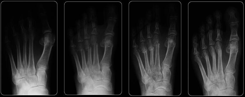 osso leva cerca de 12 semanas para se curar em nível significativo mas em alguns casos pode levar vários meses