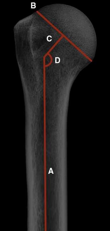 Figura 4 Medições do ângulo cabeça-diáfise: eixo diafisário do úmero (A), colo anatômico (B), perpendicular do colo anatômico (C), e ângulo cabeça-diáfise (D).