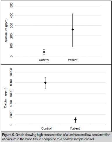 Figura 6. Gráfico mostrando alta concentração de alumínio e baixa concentração de cálcio no tecido ósseo em comparação a uma amostra controle saudável.