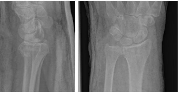 Операция при переломе луча в типичном месте   Фото до и ...