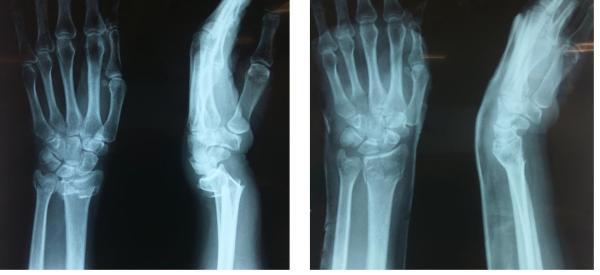 Перелом лучевой кости   Фото до и после, операция, отзывы ...