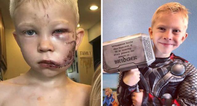 Menino herói que foi ferido no rosto ao salvar irmã de ataque de cão tem recuperação surpreendente!