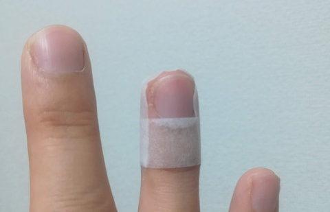 湿潤療法(ラップ療法)で指紋を取り戻した