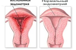 Повышенные лейкоциты в мазке у мужчин лечение — Симптоматика болезней