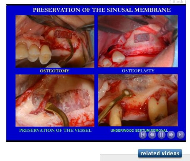 Surgerytec A Site For Surgery Videos And Slideshows