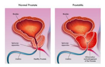 Two Prostate Images Med Pic
