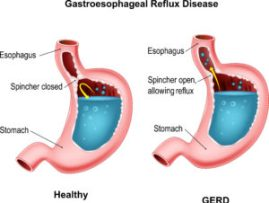 Acid Reflux - GERD Diagram