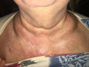 Swelling By Clavicles A Sign Of Lymphatic System Congestion