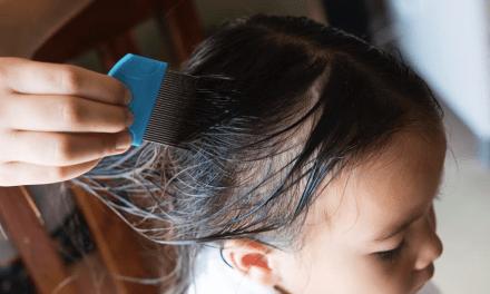LAUNOL: ¿Sabías que el Aloe Vera puede combatir pediculosis?