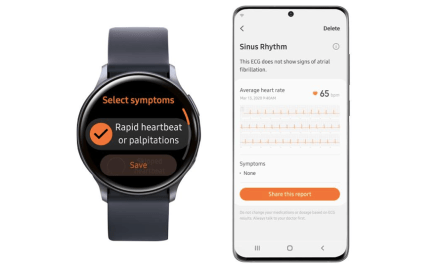 Galaxy Watch Active2 obtiene aprobación para monitoreo de ECG