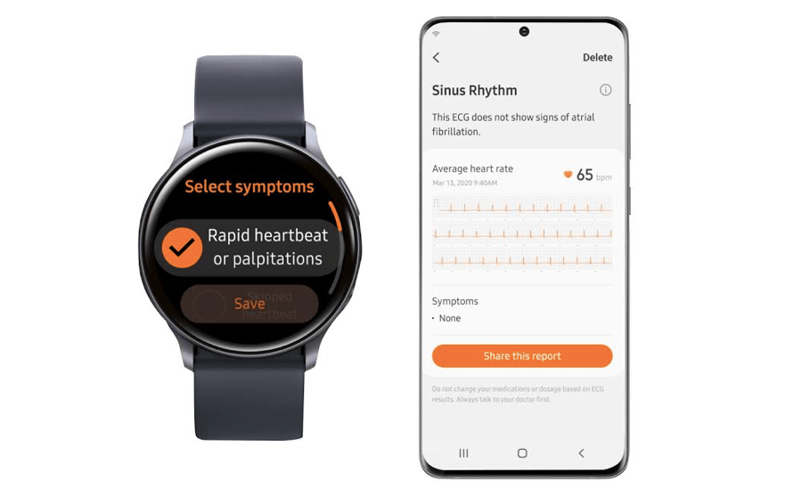 Galaxy Watch Active2 obtiene aprobación para monitoreo de ECG
