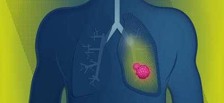 En cáncer, el de pulmón es la primera causa de muerte en Chile:  cobra más de 3500 vidas al año