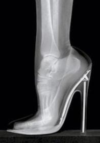 port-de-talons-hauts-osteopathe-noiseau-val-de-marne-94-osteopathie-seine-et-marne-77