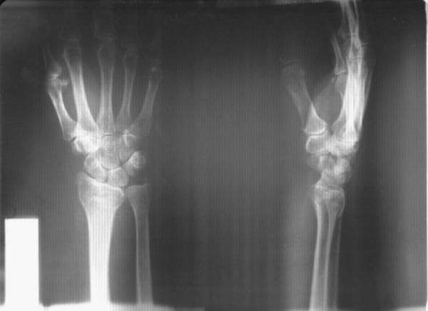 Перелом лучевой кости руки: симптомы, лечение и восстановление