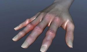 Сульфасалазин аналоги при ревматоидном артрите