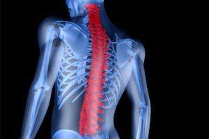 Как лечить жировую дегенерацию костного мозга. Жировая дегенерация костного мозга: что это такое и почему возникает