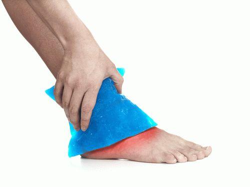 От чего воспаляются сухожилия на ногах. Лечение растяжения сухожилий ноги