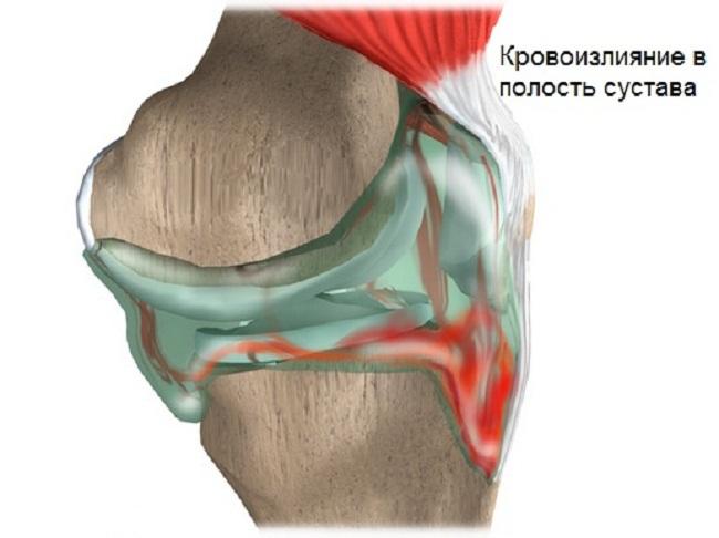Болезнь пеллегрини штида коленного сустава лечение. Дегенеративный обызвествляющий периартрит — болезнь Пеллегрини-Штиды в коленном суставе. Патогенез синдрома Пеллегрини-Штиды