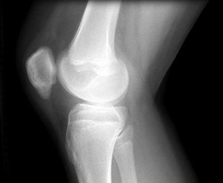 Остеохондропатия коленного сустава народными средствами