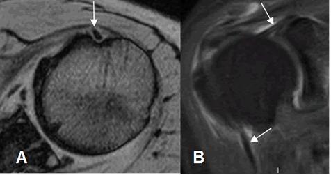 Resultado de imagen para tendinitis biceps resonancia