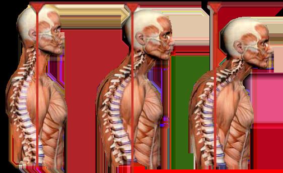 simonetta alibrandi osteopata corretta postura del capo