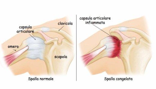 simonetta alibrandi osteopata roma posturologo spalla congelata periartrite scapolo-omerale