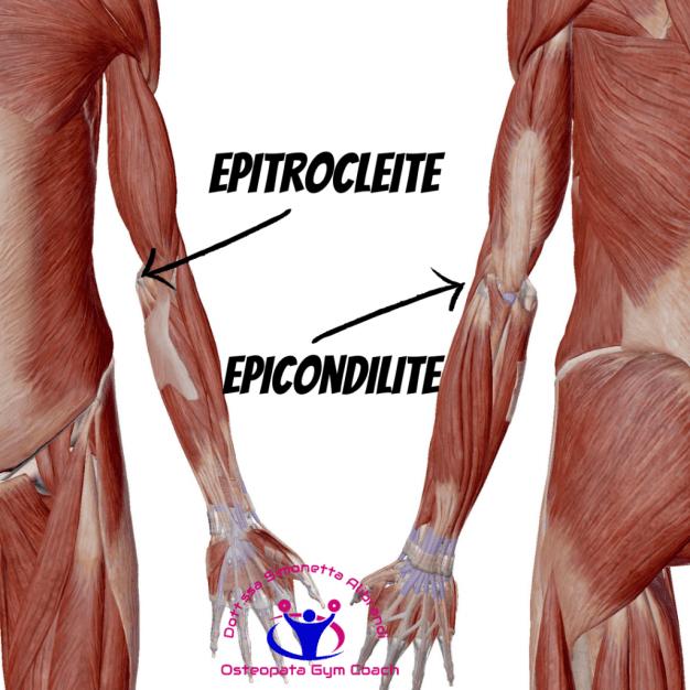 simonetta-alibrandi-epicondilite-Epitrocleite
