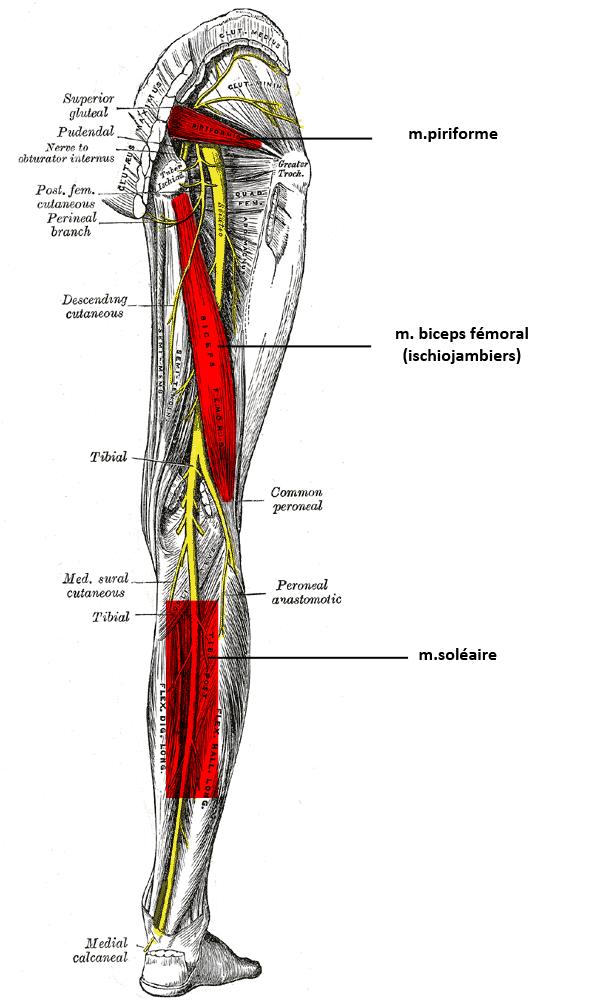 Zones de compression musculaire du sciatique