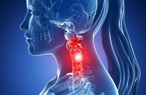 Douleur cervicale ostéopathie julien moreno ostéopathe