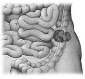 colon-tumor