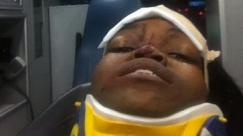 The Random Bystander / Howard University student shot in head by riot police officer