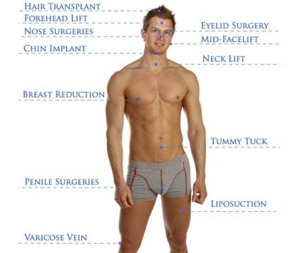 male-plastic-surgery-infographic