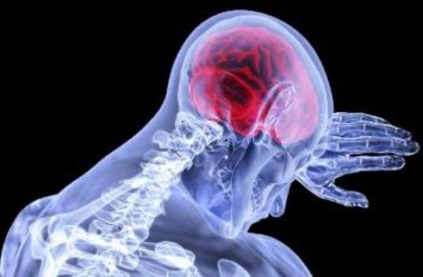 Risiko Terserang Silent Stroke Bisa Dideteksi