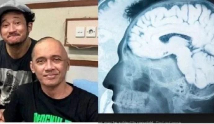 Kanker Otak Inilah Penyebab Kematian Agung Hercules