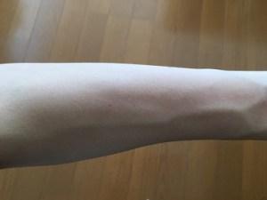 lovely leg epi w care