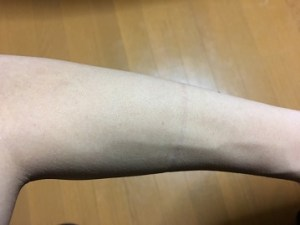 ラブリーレッグリムーバークリームを左腕に使用した画像