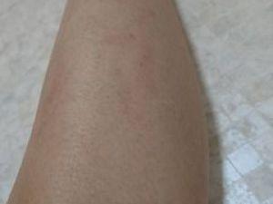 ジョウモウ完了後の脚