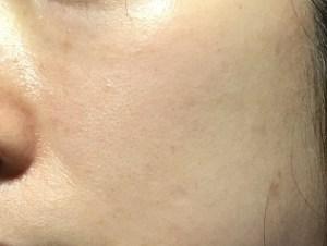 アルビニア使用後の肌状況