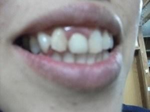 歯を白くしてくれる商品