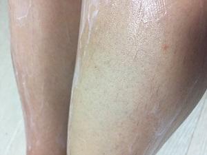 メルティヴィーナスリムーバークリームを塗って10分後に拭き取った後の肌画像