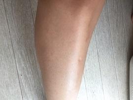 メルティービーナスでケアした後の足の画像