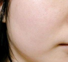 ルミナスホワイトを使用して35日目に撮影した肌画像