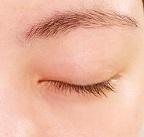 きちんと保湿をし、エイジングケアができている目の周り