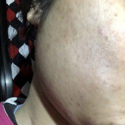 ピオリナを塗って17日目の肌状況画像